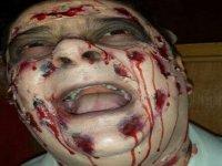 Cara con sangre y heridas de un zombi